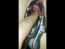 Teen Italian Closeup Pussy Speculum Inside