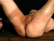 Dr Lomp World - Casual Slit Whipping